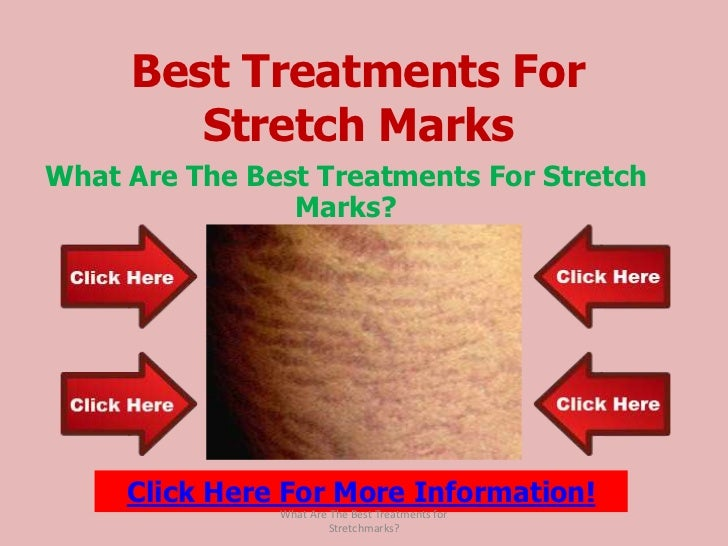 Best treatments for stretch marks