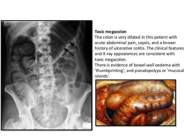 Toxic Megacolon - wikiRadiography