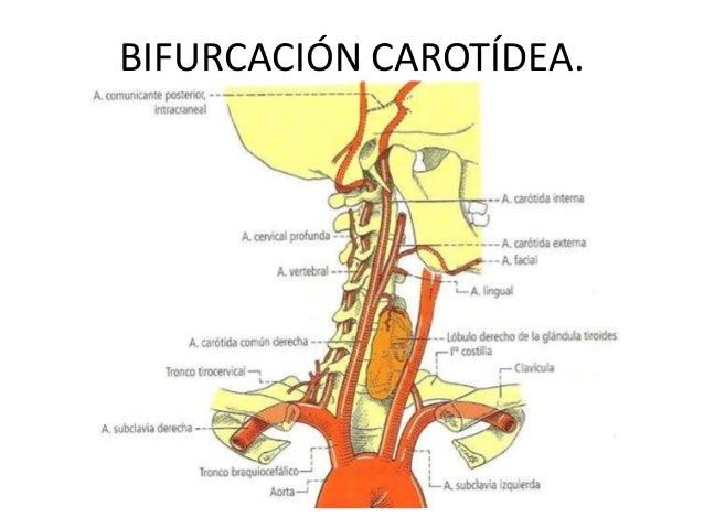 Bifurcación carotídea y carótida externa