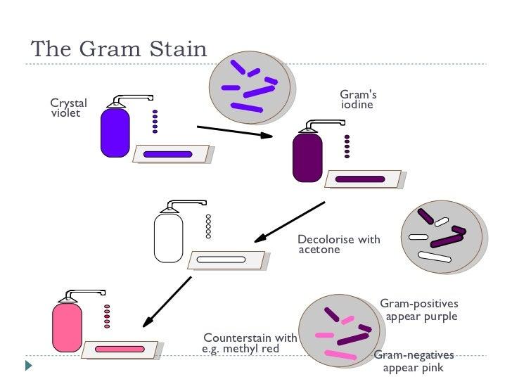 Bio303 Laboratory Diagnosis Of Infection
