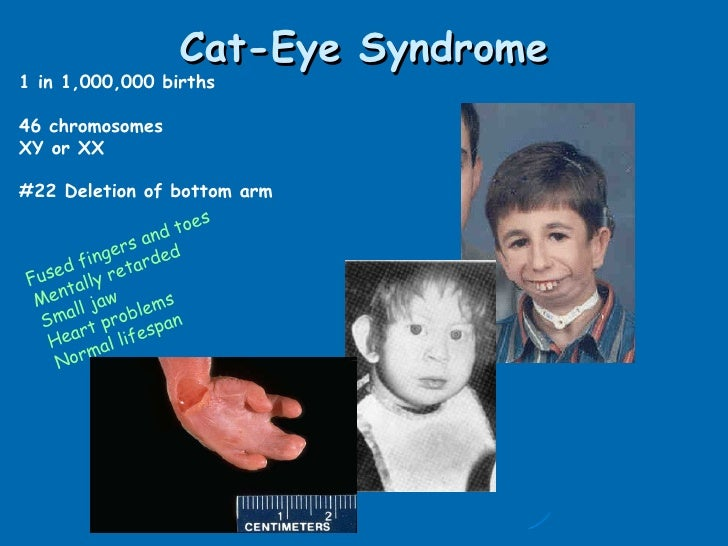 Human With Cat Eyes Syndrome Cat Eye Syndrome 1 in