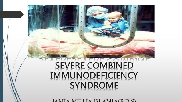 severe combined immunodeficiency disorder analysis Severe combined immunodeficiency the analysis of major subsets of peripheral blood lymphocytes was performed by a primary combined immunodeficiency disorder.