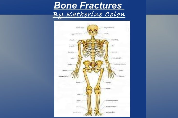Bone Fractures  By Katherine Colon