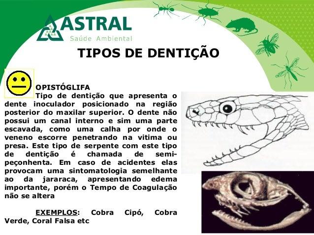 TIPOS DE DENTIÇÃO OPISTÓGLIFAOPISTÓGLIFA Tipo de dentição que apresenta o dente inoculador posicionado na região posterior...