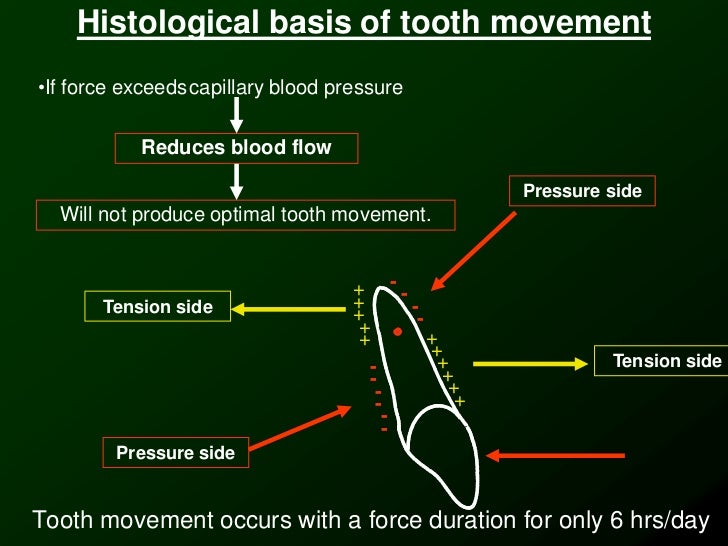 Slight Tooth Movement Basis of Tooth Movement•if
