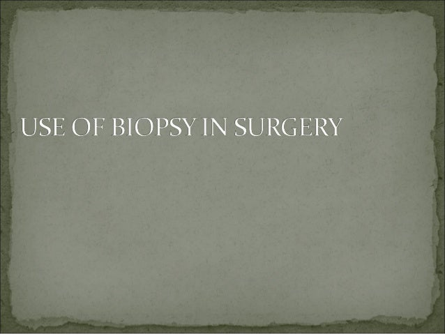 Biopsy in surgery
