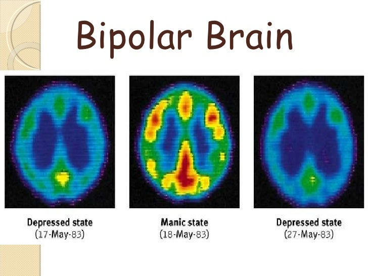 Introduction To Bipolar Disorder And Mood Disorders