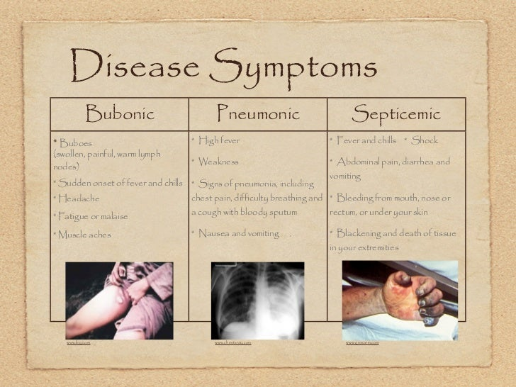 the black death symptoms causes and A graphic description of black death symptoms and causes of the disease | the black death.
