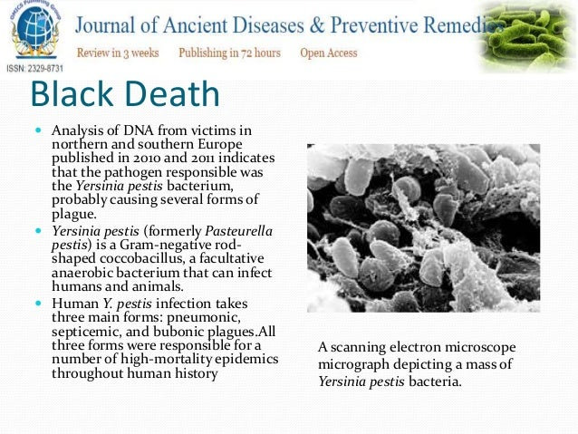understanding the black death of europe Students will research the black death in medieval europe to gain an understanding of the devastating effects of this pandemic.