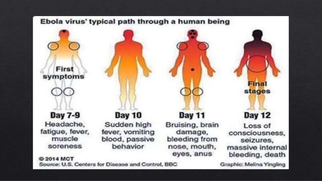 a comparison of the black death and the ebola virus History textbooks have got it wrong about the black death, which they say was caused by bubonic plague spread by rats and their fleas a new study suggests that it was in fact caused by an ebola-like virus transmitted directly from person to person if the findings are confirmed it could mean that a.