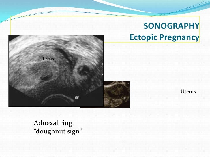 Ectopic Pregnancy Vs Normal Pregnancy