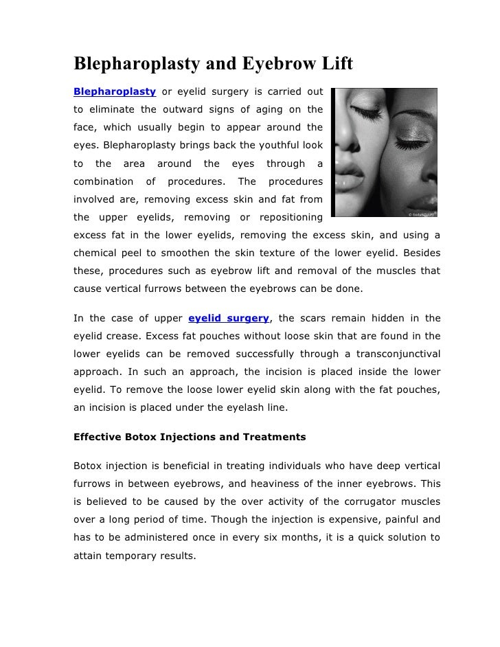 Blepharoplasty and eyebrow lift