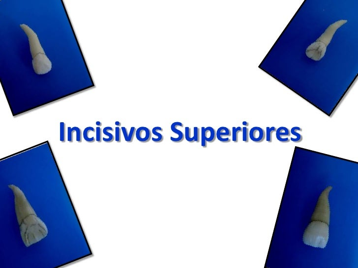 Incisivos Superiores<br />