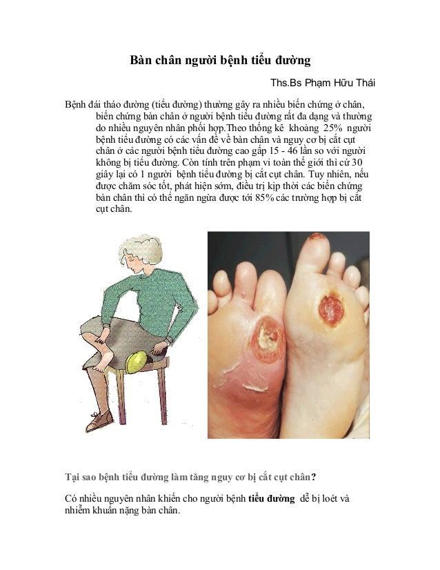 Bàn chân tiểu đường