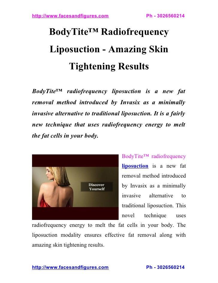 BodyTite Radiofrequency Liposuction - Amazing Skin Tightening Results
