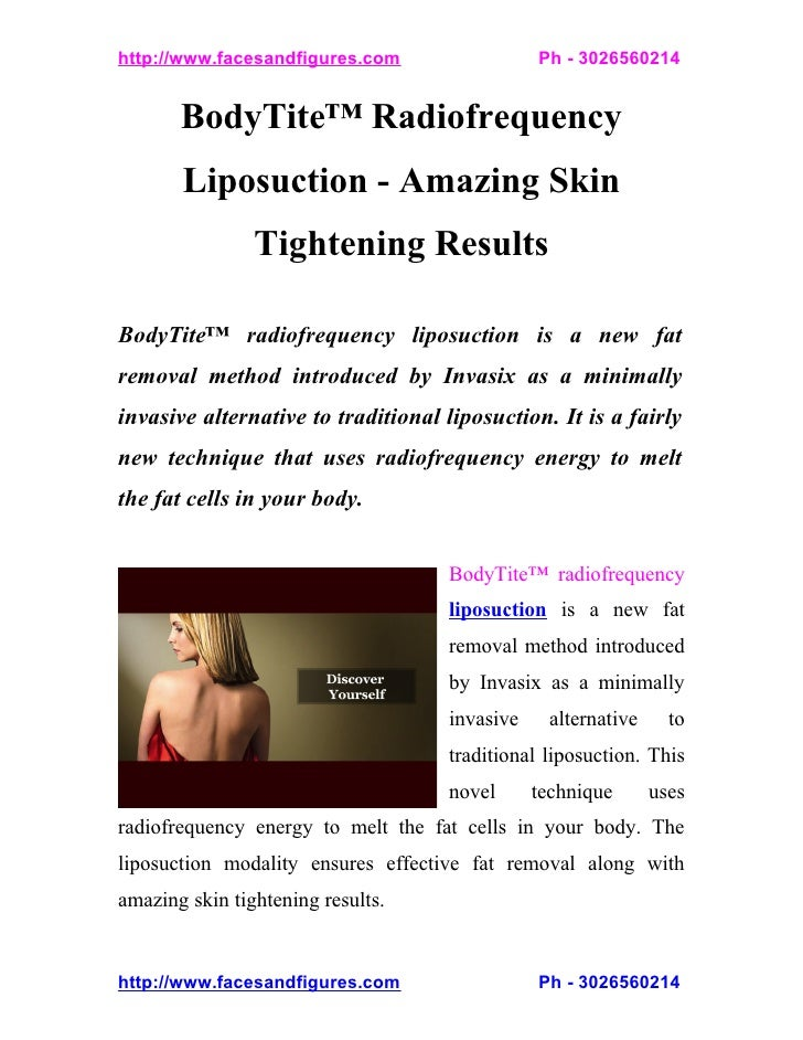 BodyTite Radiofrequency Liposuction - Amazing Skin Tightening Results