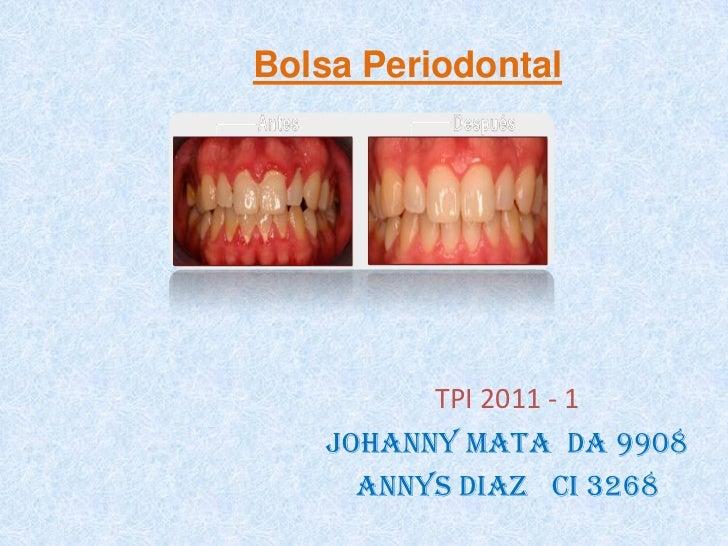 Bolsa PeriodontalBolsa periodontal           TPI 2011 - 1     Johanny mata da 9908       Annys Diaz ci 3268