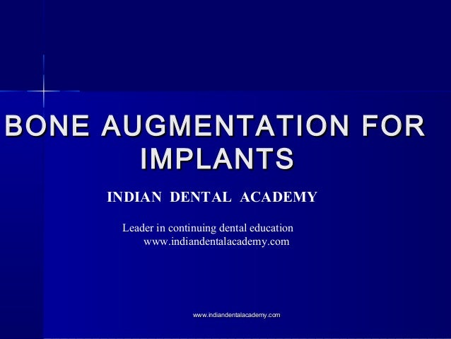 BONE AUGMENTATION FORBONE AUGMENTATION FOR IMPLANTSIMPLANTS INDIAN DENTAL ACADEMY Leader in continuing dental education ww...