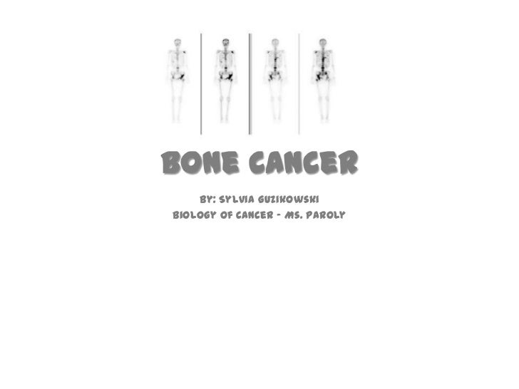 Bone Cancer<br />By: Sylvia Guzikowski<br />Biology of Cancer – Ms. Paroly <br />