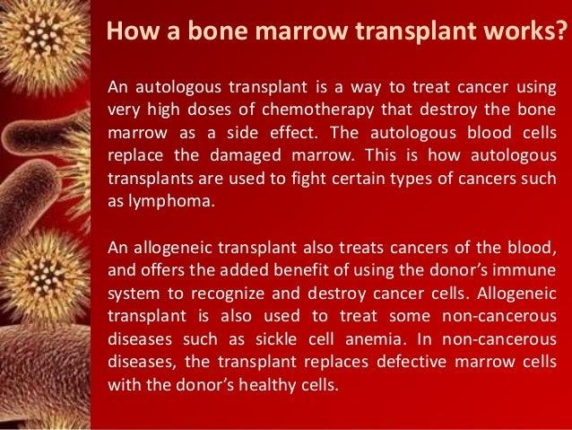 leukemia cancer and bone marrow transplants Bone marrow transplant  which can help kill cancer cells directly bone marrow transplants can  blood and marrow stem cell transplantation leukemia .