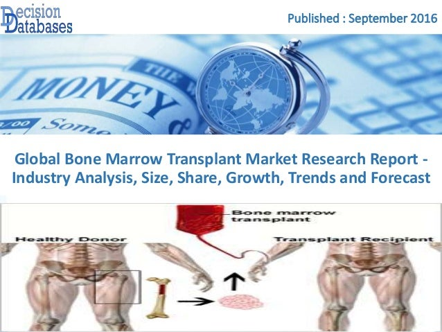 bone marrow transplant research paper Papers on an exploratory study of recipients perceptions of bone marrow transplantation term papers and research papers.