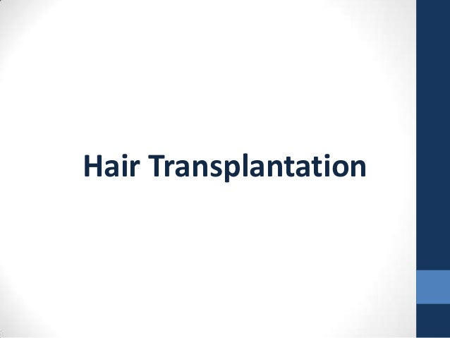 Bosley Hair Transplantation