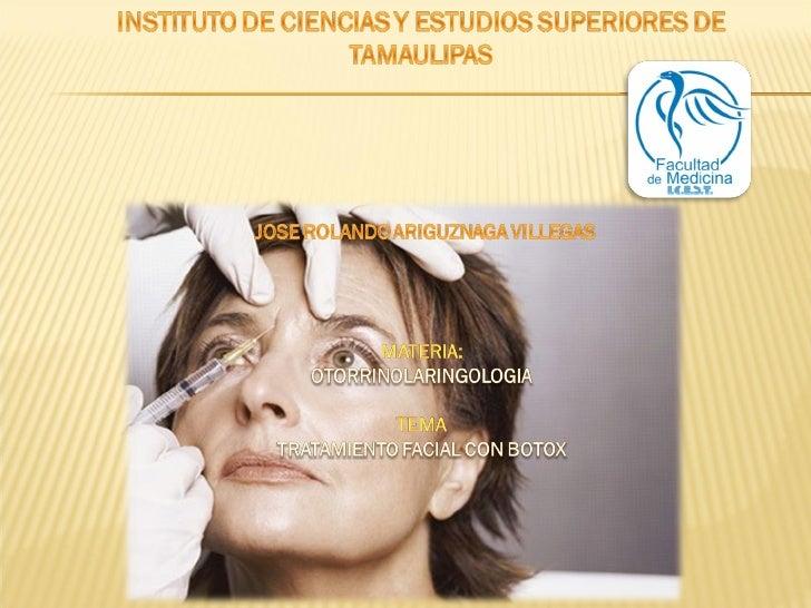 Botox Tratamiento facial