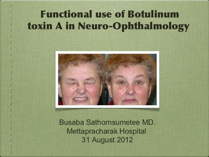 Functional use of Botulinumtoxin A in Neuro-Ophthalmology     Busaba Sathornsumetee MD.       Mettapracharak Hospital     ...