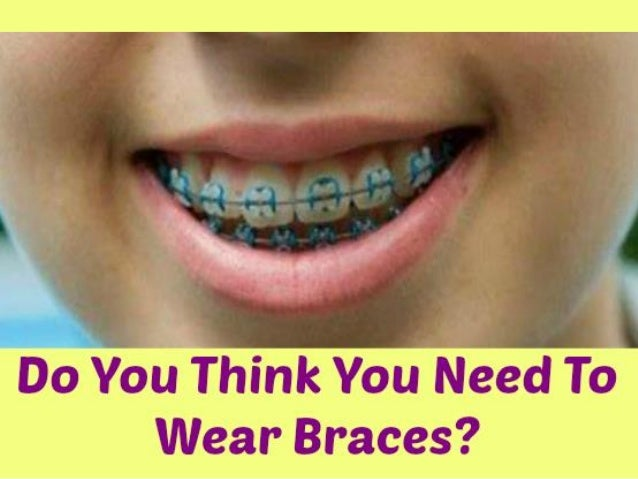 Do you Think You Need To Wear Braces?