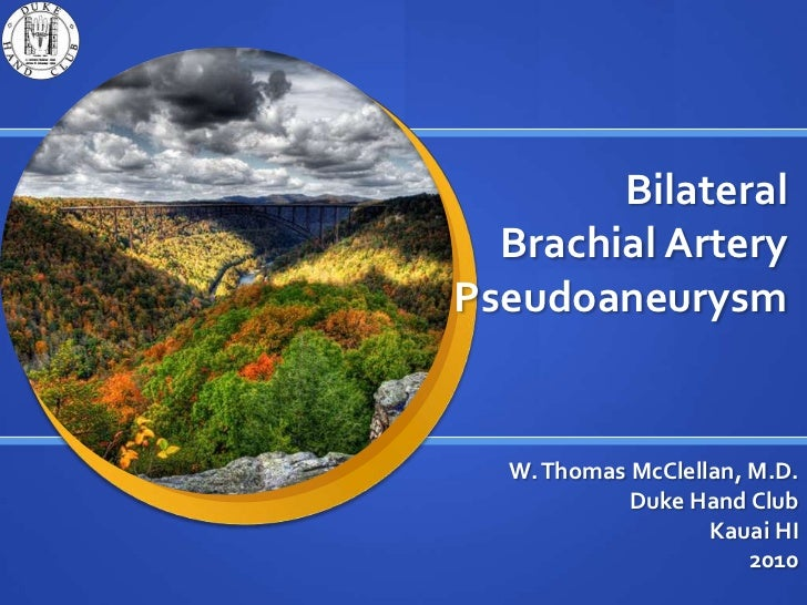 Bilateral Brachial Artery Pseudoaneurysm<br />W. Thomas McClellan, M.D.<br />Duke Hand Club <br />Kauai HI <br />2010<br />