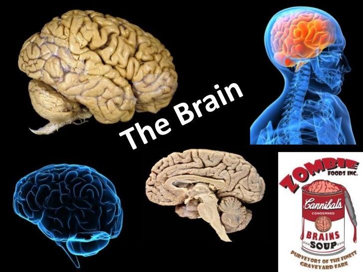 The Brain StemCorpusCallosum                            Gyri                             Sucli