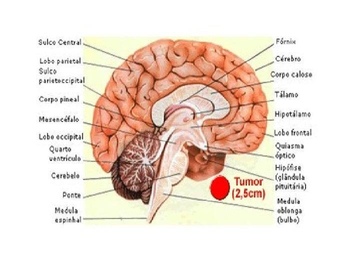 Brain   cerebro  3D