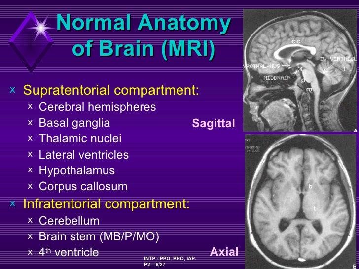 OCD Dopamine and the Nucleus Acumbens  MyBrainNotescom
