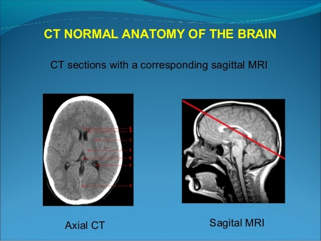 Atlas of Brain MRI Anatomy  Radiology