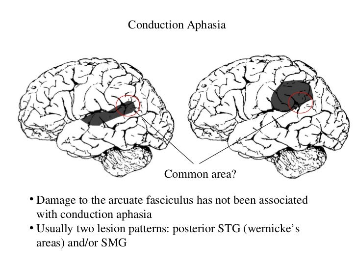 Conduction Aphasia Related Keywords & Suggestions - Conduction Aphasia ...
