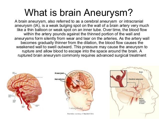 Aneurysm Operation Brain What is Brain Aneurysm