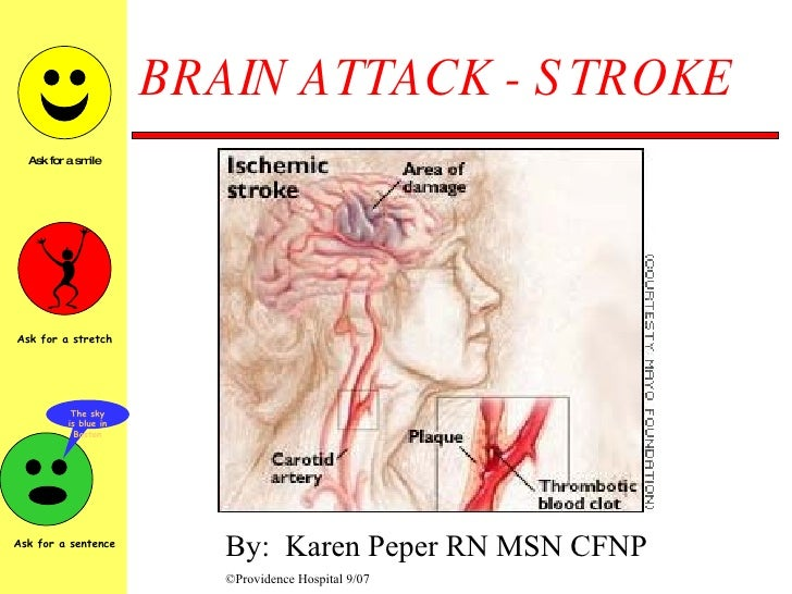 BRAIN ATTACK - STROKE By:  Karen Peper RN MSN CFNP ©Providence Hospital 9/07