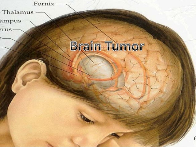 Brain Cancer Prognosis