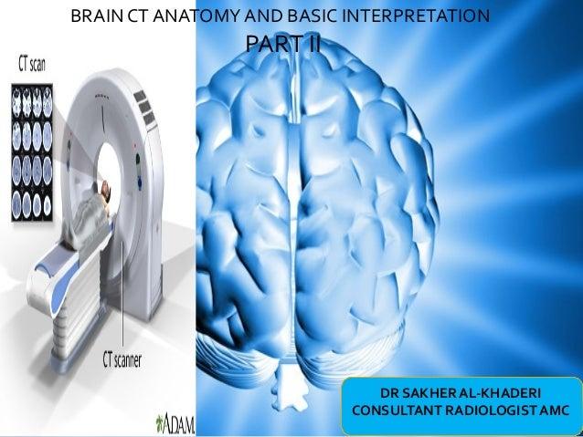 Anatomy ct brain