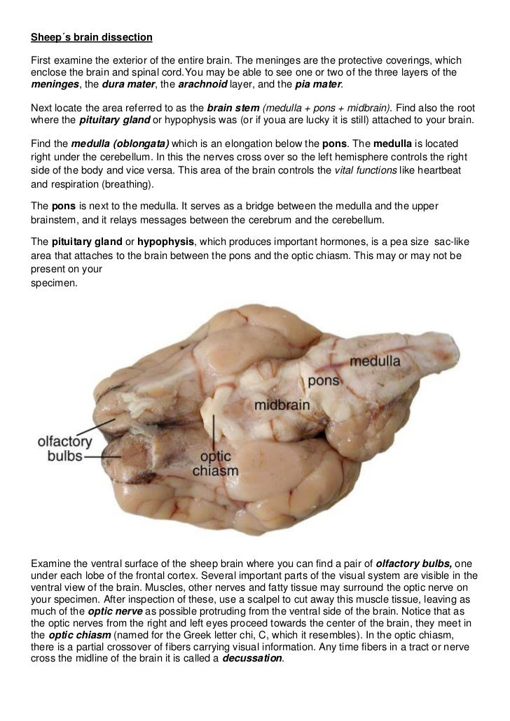 Sheep´s brain dissectionFirst examine the exterior of the entire brain. The meninges are the protective coverings, whichen...
