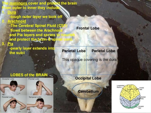 Brain dissection pictures