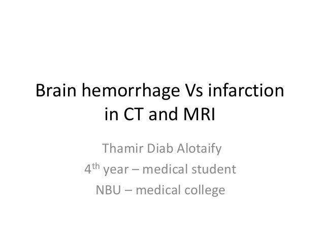 Brain hemorrhage Vs infarction in CT and MRI Thamir Diab Alotaify 4th year – medical student NBU – medical college