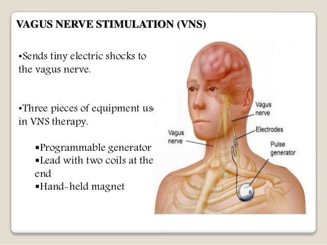 Vagus Nerve Brain Vagus Nerve Stimulation