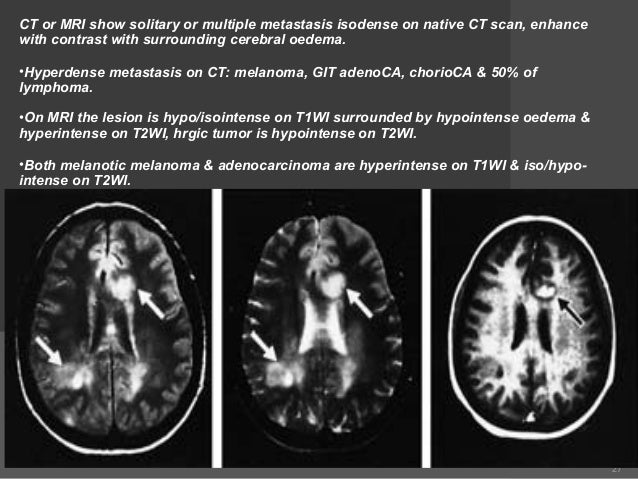 Pics for brain tumor mri without contrast for What does contrast do