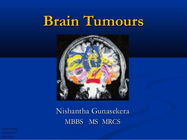 Brain Tumours             Nishantha Gunasekera               MBBS MS MRCSNeuroSurgEducation2009NG