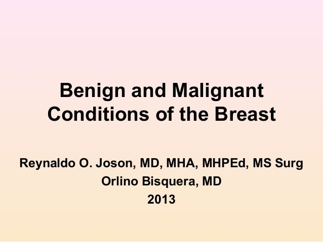 Benign and Malignant Conditions of the Breast Reynaldo O. Joson, MD, MHA, MHPEd, MS Surg Orlino Bisquera, MD 2013