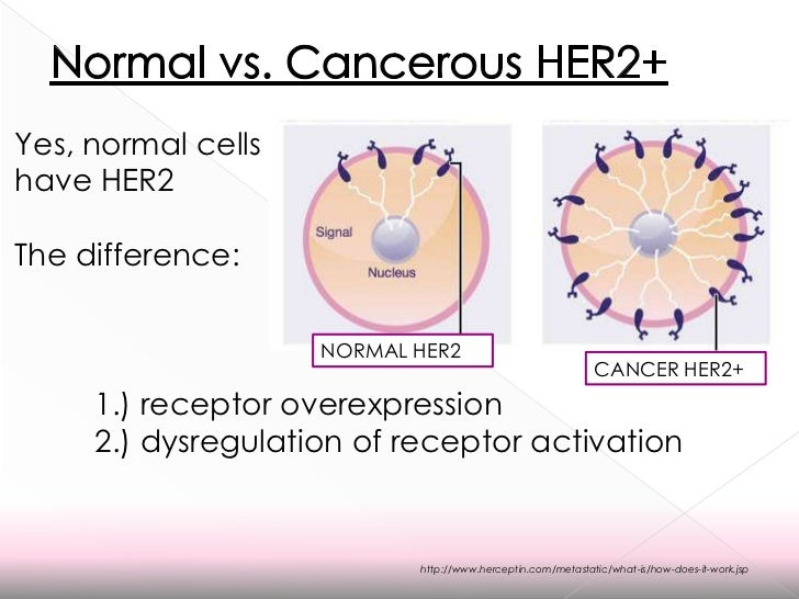 Pr cancer breast and in er