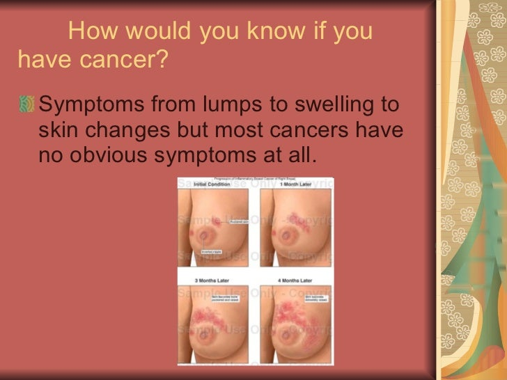 you know if you have breast cancer