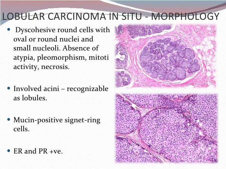 Signet Ring Cell Cancer Treatment