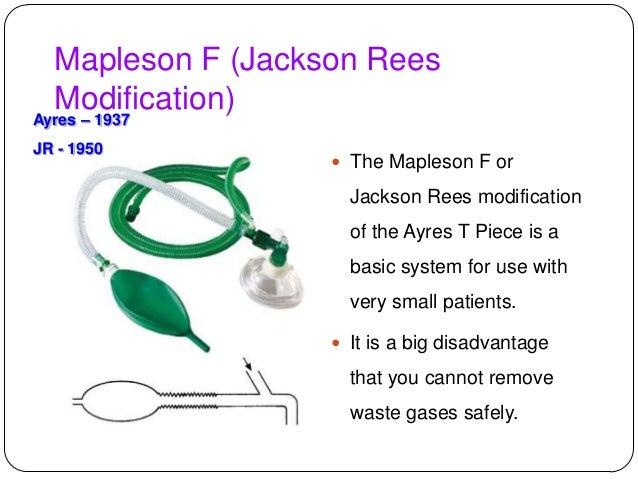 Circuito Jackson Rees : Breathing circuits